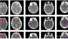 该AI工具自动识别不同类型的脑损伤